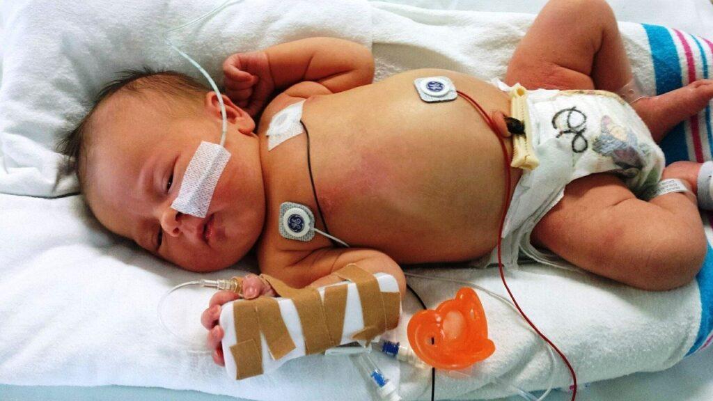 新生児集中治療室の赤ちゃん
